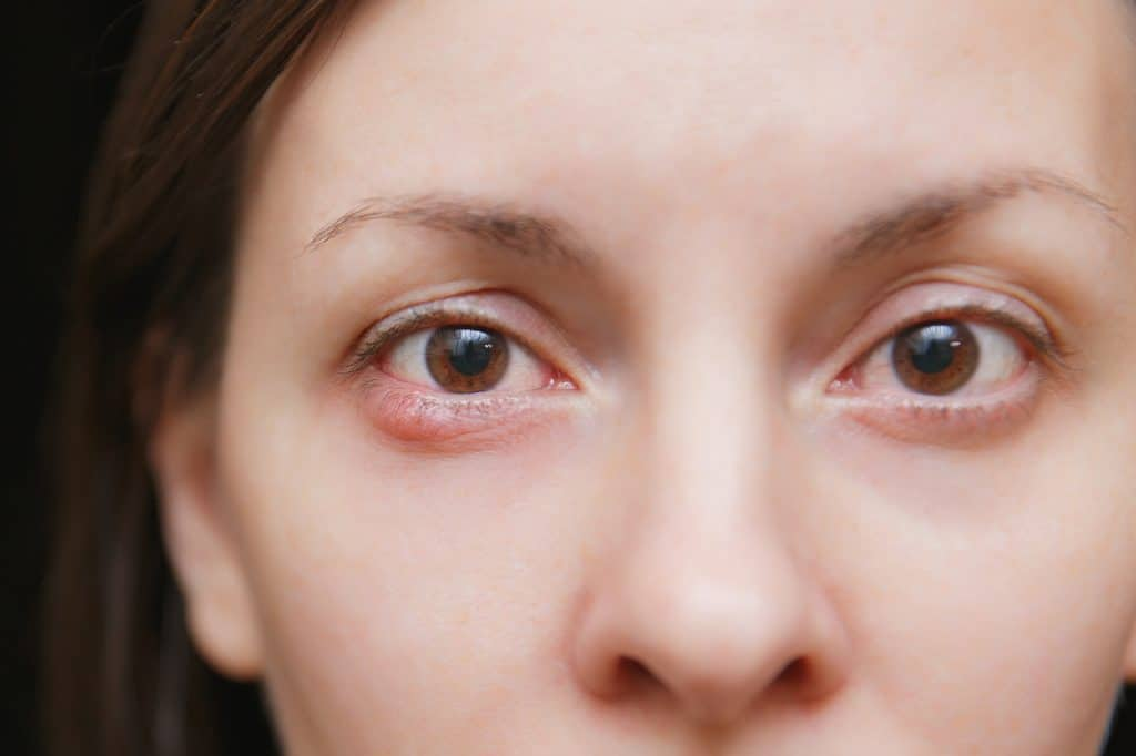 How to Get Rid of Blepharitis for Good (and Keep it Away!)