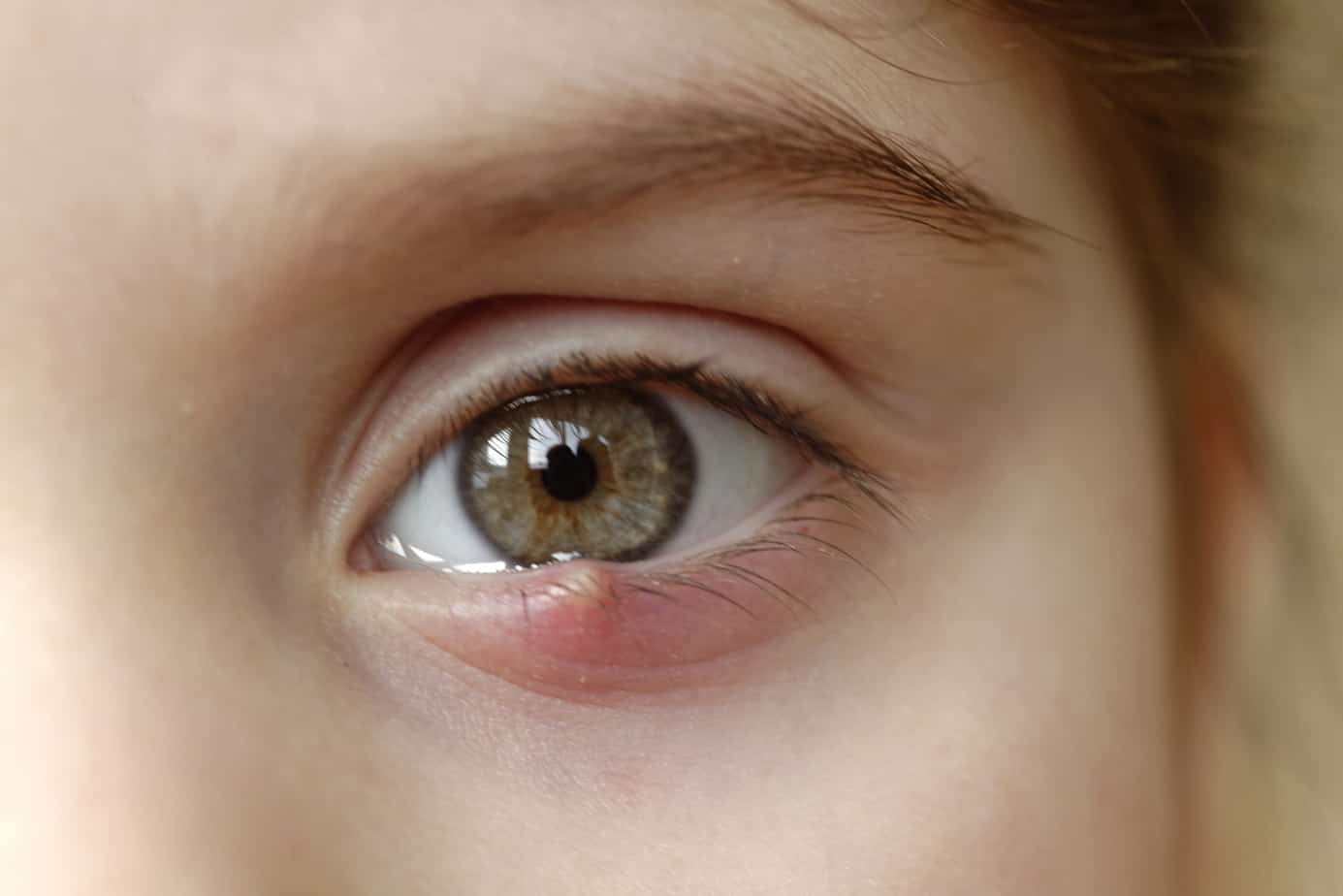 Close-up of a child's eye