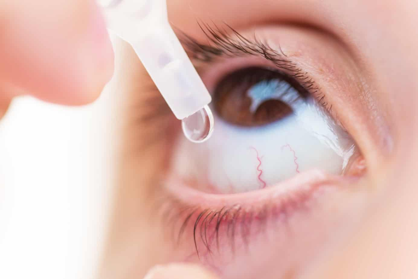 Possible Treatments for Eye Irritation and Redness