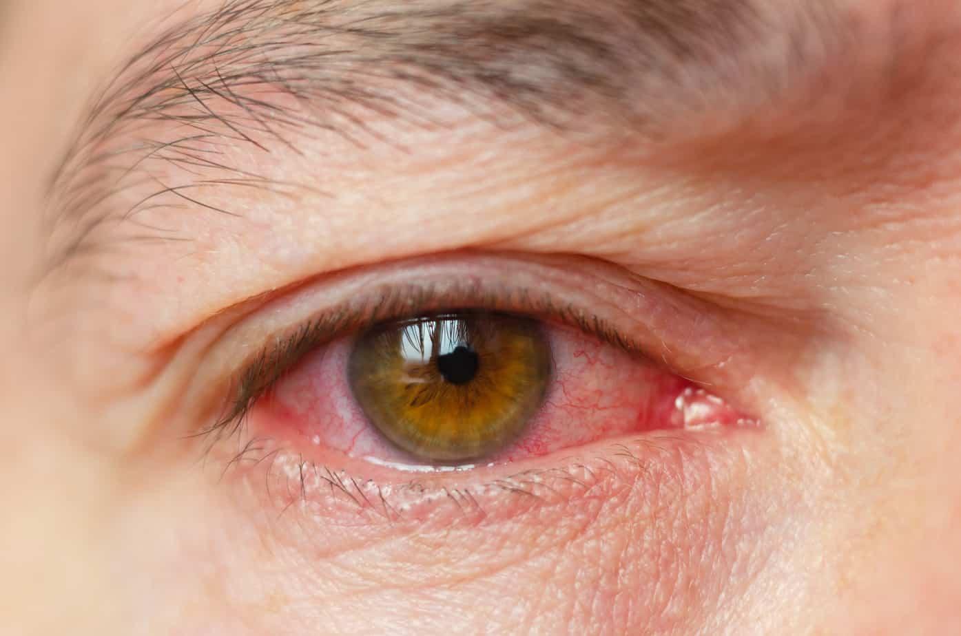 Perennial Allergic Conjunctivitis