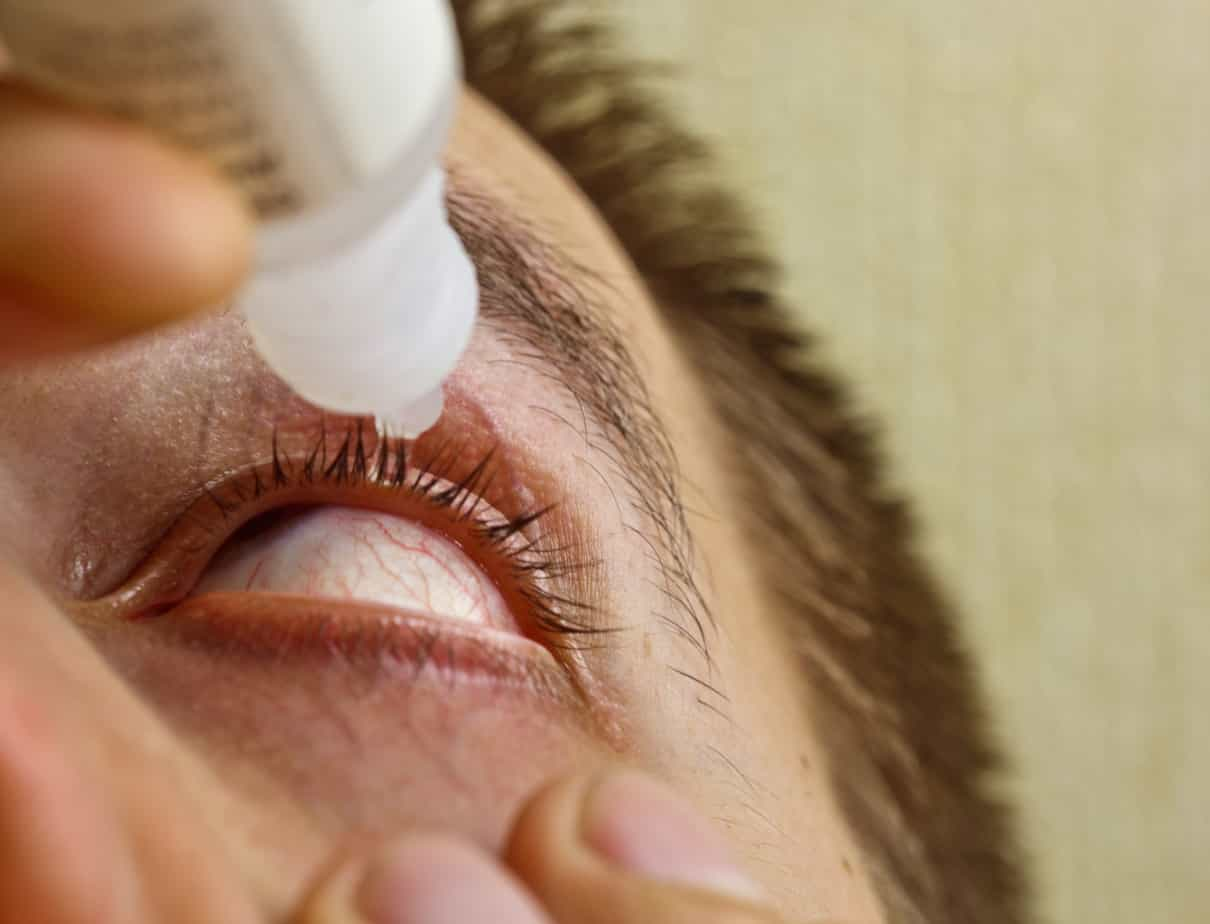 a man drips open human eye
