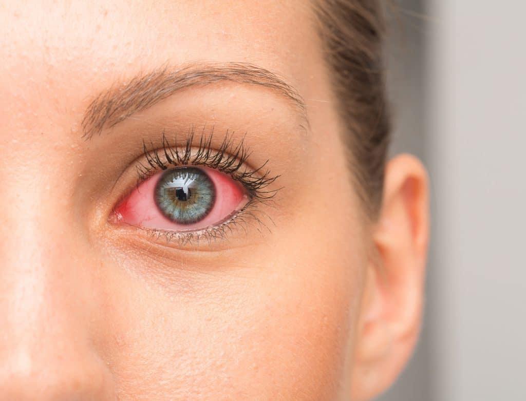 Redness on female eye
