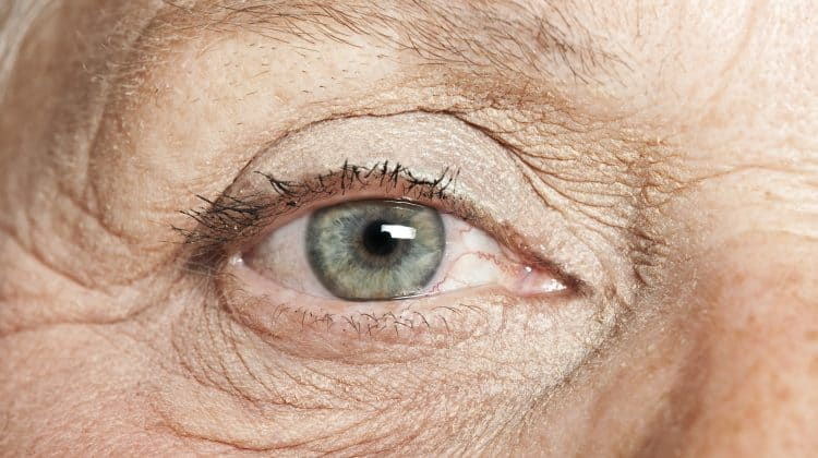 Causes of Watery Eyes in the Elderly