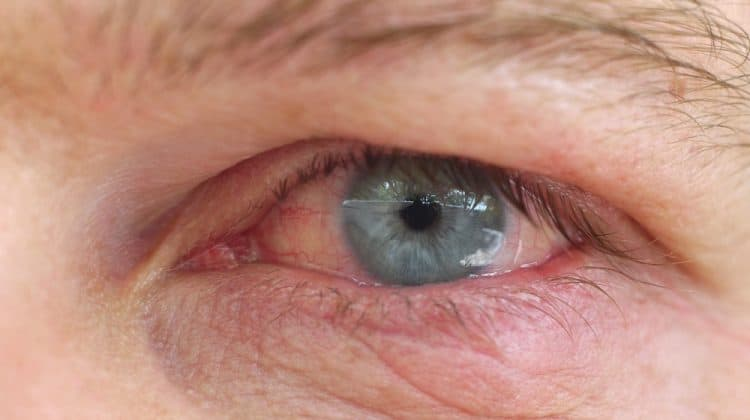 Red Eyes from Contact Lenses – Causes and Solutions