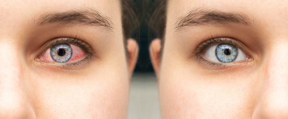Comparison closeup